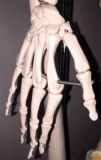 サックス 腱鞘炎 骨
